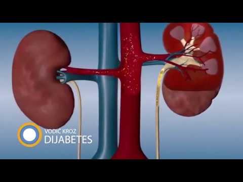 urolitijaze hipertenzija razlog