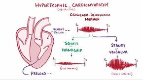 rusa liječenje hipertenzije)