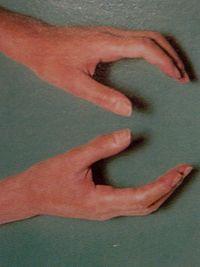 hipertenzija u raynaud-ov sindrom