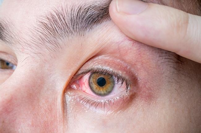 Infektivne upale spojnice oka – konjunktivitis