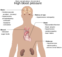 visok puls hipertenzija