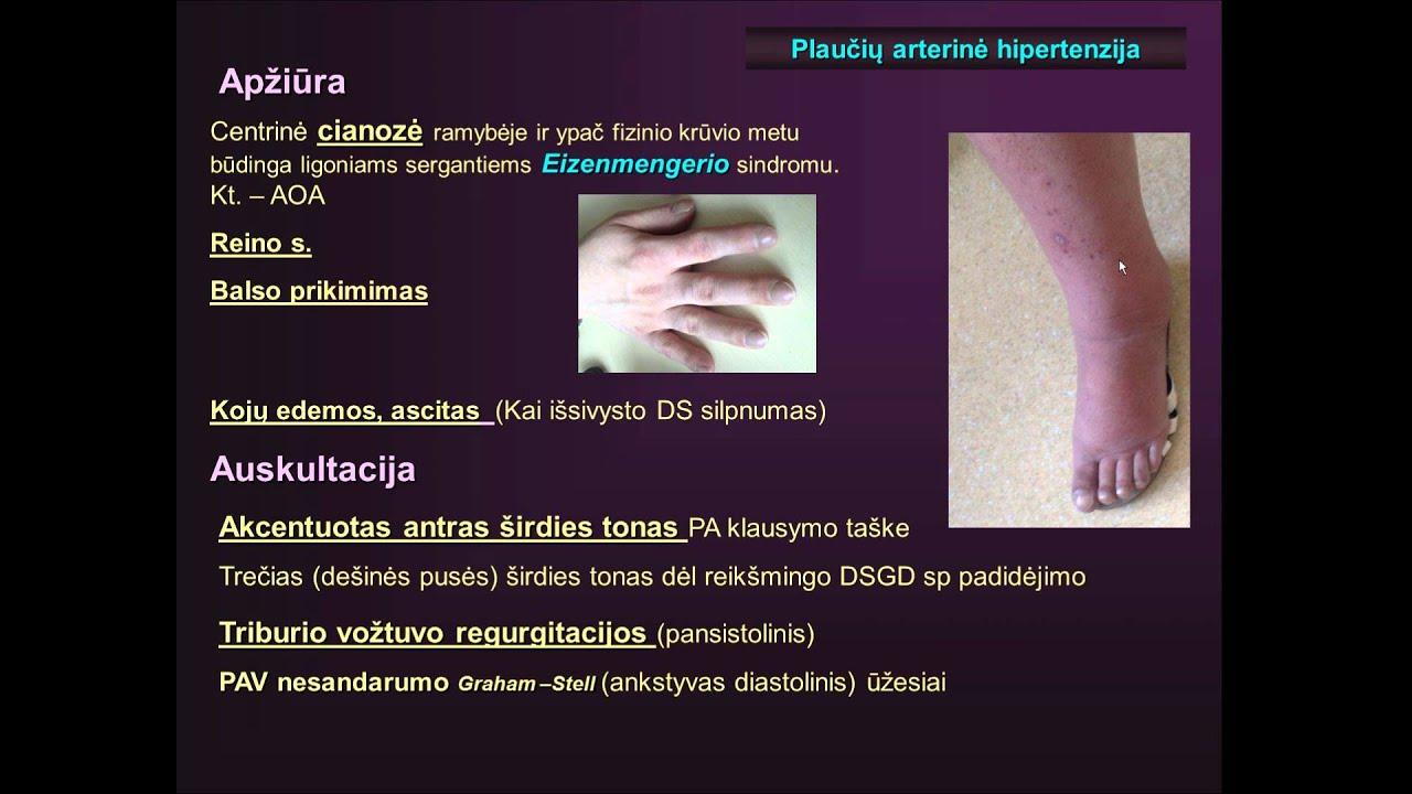 vlok hipertenzija kako definirati hipertenzije na oči
